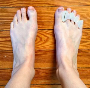 Correct Toes Review